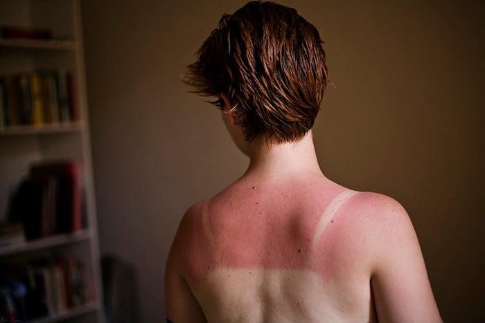 A burnt back.