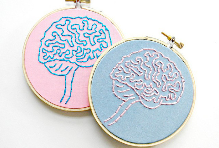 A stitching of two brains anatomies.