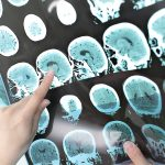 Research Finds Protein Could Diagnose CTE in Patients