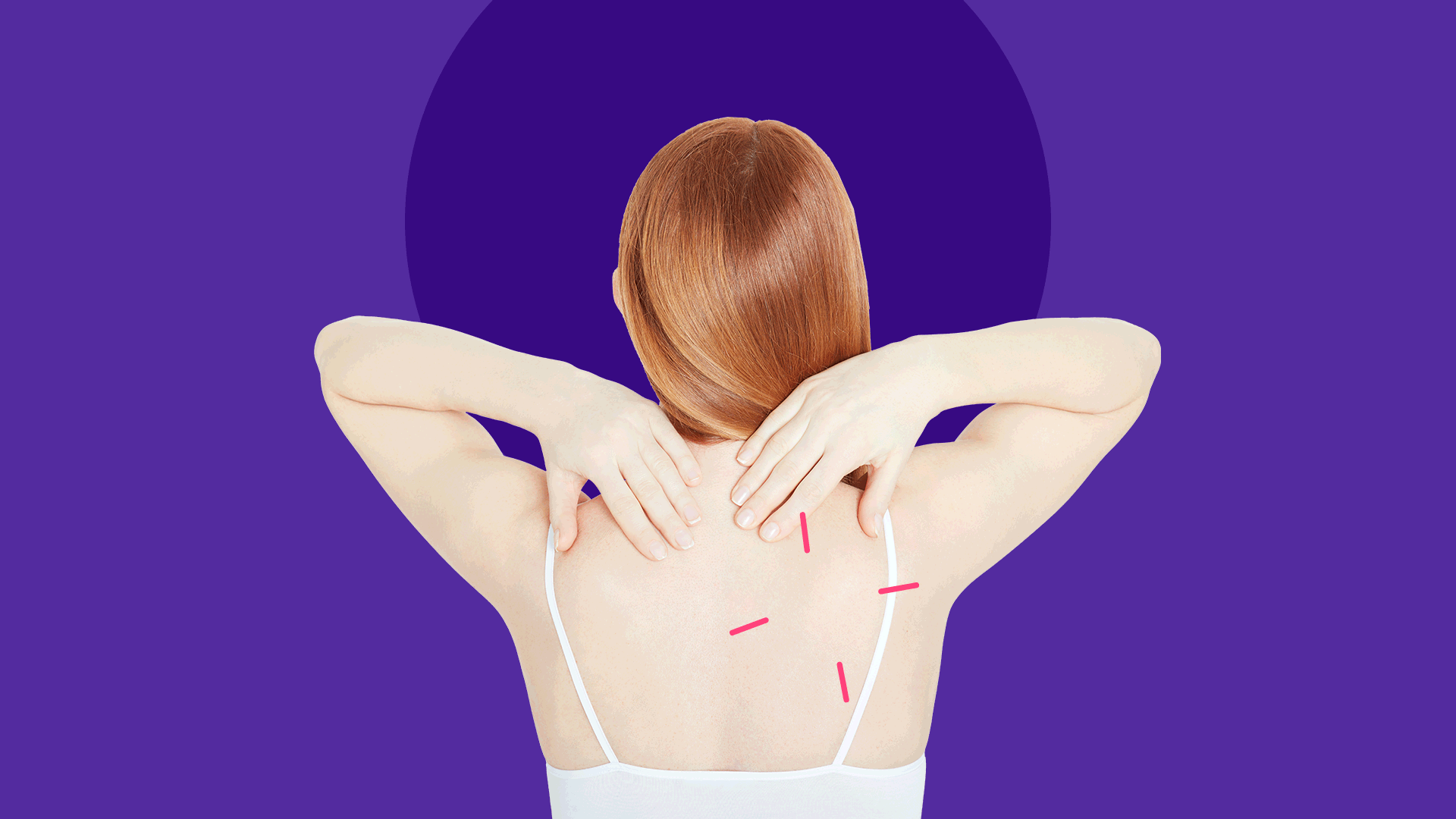 What you should know about the birth control patch, Xulane