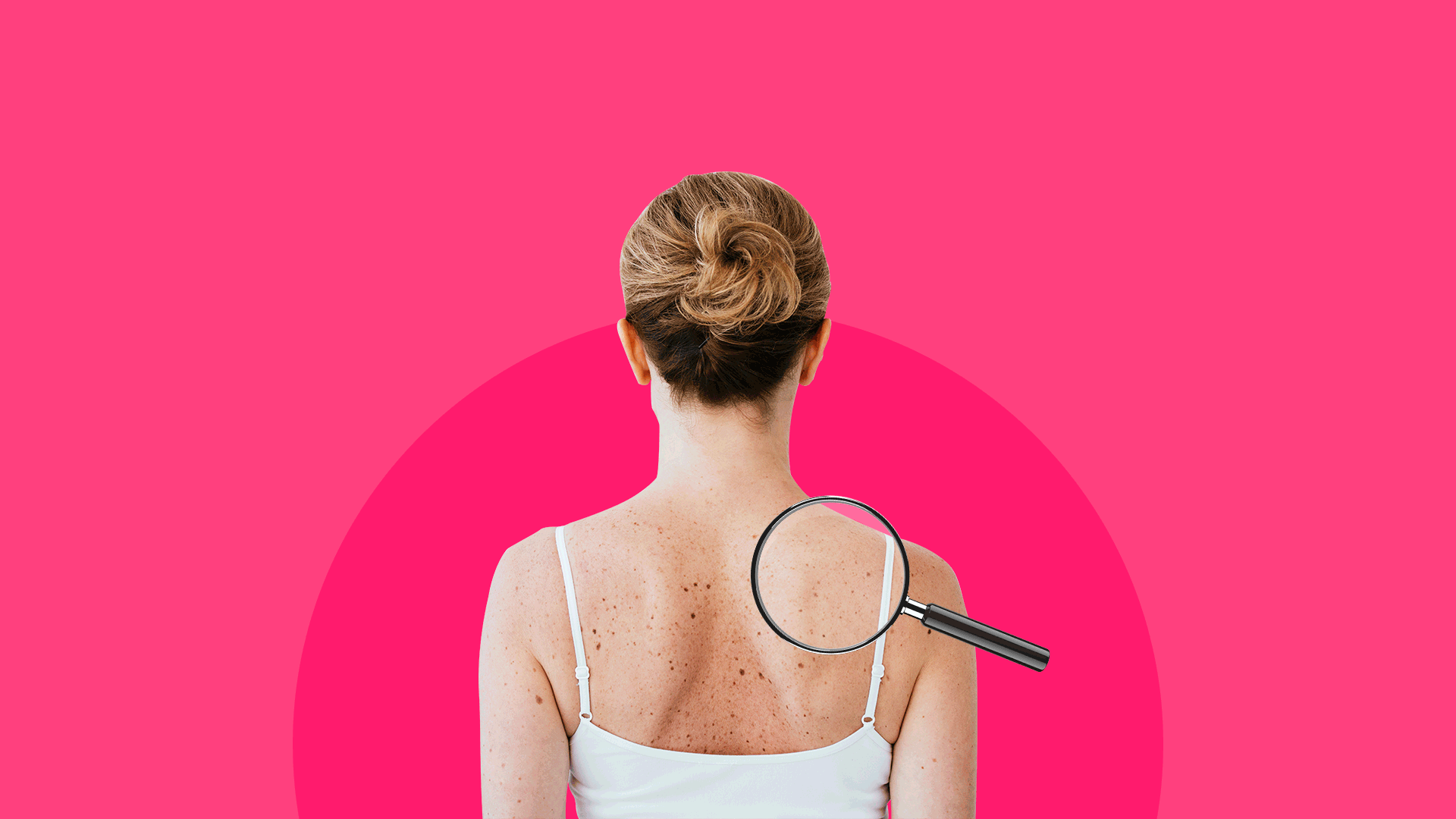 What a dermatologist can do for you