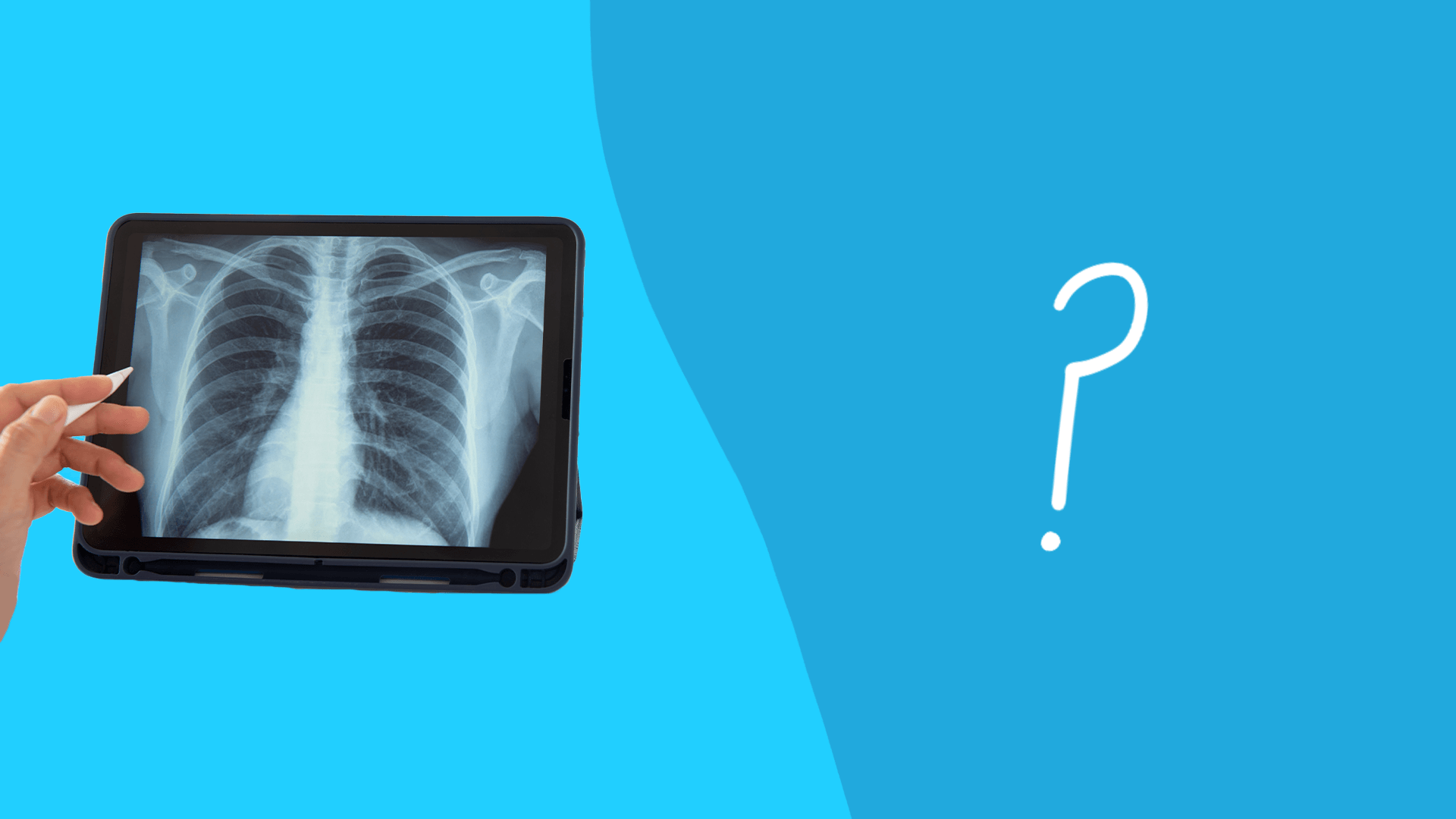 Atelectasis vs. pneumothorax: How do you treat a collapsed lung?